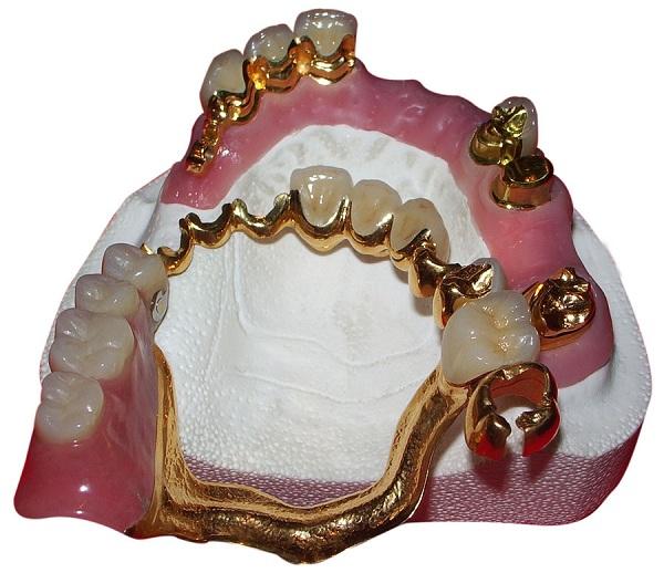 отбеливание зубов чебоксары цены отзывы