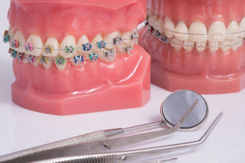 Уход за зубами после установки брекетов